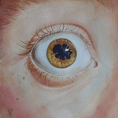 Painting - What's The Matter With Uveitis? by Kirsten Beitler