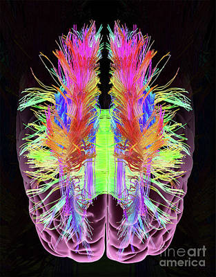 Photograph - White Matter Fibers And Brain  by Doc Braham