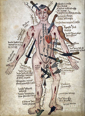 Wound Man, 15th Century Art Print