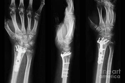 Photograph - Wrist Plate And Screws by Olga Hamilton
