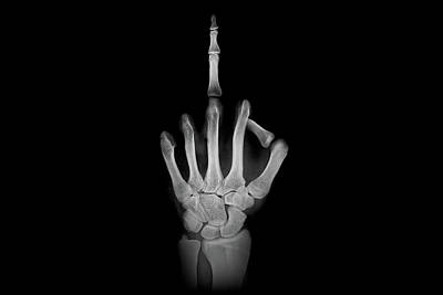 Photograph - X-ray - Giving The Finger by Jonny Lindner