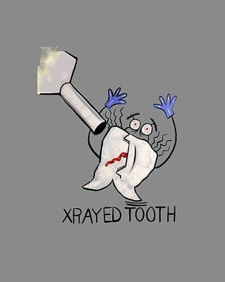 Xrayed Tooth T-shirt Anthony Falbo Art Print