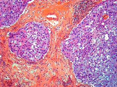 Breast Cancer, Light Micrograph Art Print by Steve Gschmeissner