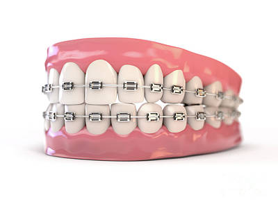 Digital Art Rights Managed Images - Fake Teeth Set With Braces Royalty-Free Image by Allan Swart
