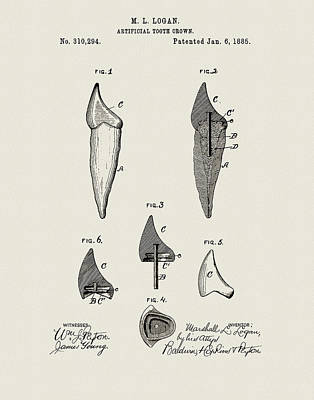 Drawing - Dental Crown Patent by Dan Sproul