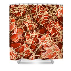 Blood Clot Sem, 2 Of 3 Shower Curtain by David M. Phillips