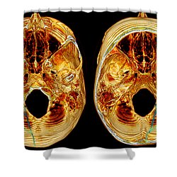 3d Ct Reconstruction Of Skull Fracture Shower Curtain by Scott Camazine