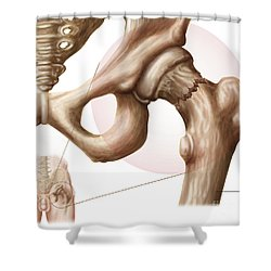 Anatomy Of Hip Fracture Shower Curtain by Stocktrek Images