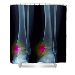 Ankle Fracture Shower Curtain by Scott Camazine