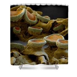 Common Orange Lichen Shower Curtain by Eye of Science