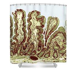 Giardiasis Light Micrograph Shower Curtain by Science Source