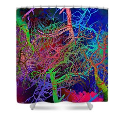 Glorious Bare Trees Shower Curtain