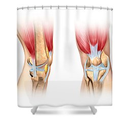 Human Knee Cutaway Illustration Shower Curtain by Leonello Calvetti