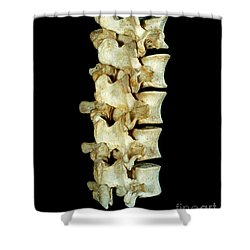 Lumbar Vertebrae Shower Curtain by VideoSurgery