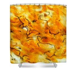 Treponema Pallidum Lm Shower Curtain by Michael Abbey
