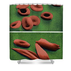 Normal And Sickle Red Blood Cells Shower Curtain by Omikron