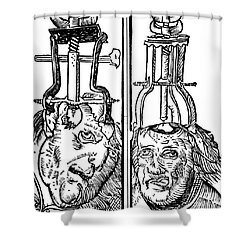 Trepanning 1525 Shower Curtain by Science Source