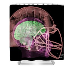 X-ray Of Head In Football Helmet Shower Curtain by Ted Kinsman