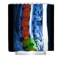 Herniated Disc Shower Curtain by Medical Body Scans
