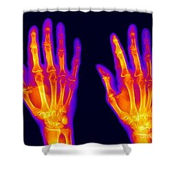 Normal Hand Shower Curtain by Ted Kinsman