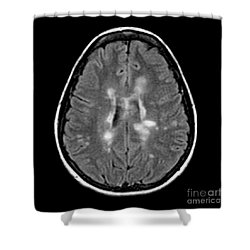 Mri Of Multiple Sclerosis Shower Curtain by Medical Body Scans