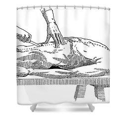 A Handbook Of Morbid Anatomy Shower Curtain by Science Source
