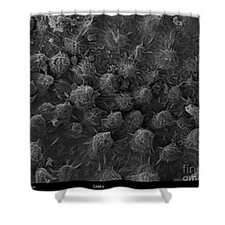 American Toad Skin, Sem Shower Curtain by Ted Kinsman
