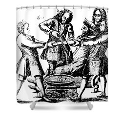 Amputation 1719 Shower Curtain by Science Source