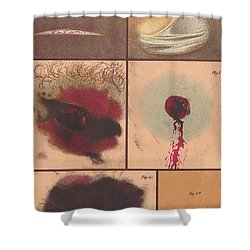 Bloodstain, Blisters, Bullet Holes, 1864 Shower Curtain by Science Source