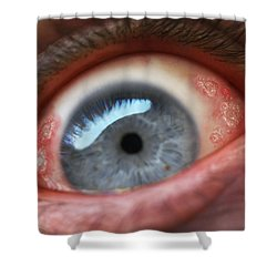 Eyesore Shower Curtain by Baron Dixon