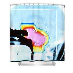 Proton Beam Therapy Shower Curtain by Science Source
