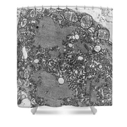 Rabies Virus Shower Curtain by Science Source
