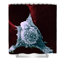 Sem Of Metastasis Shower Curtain by Science Source