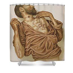 Suicide Through Stabbing 1898 Shower Curtain by Science Source