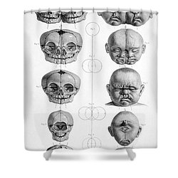 Surgical Anatomy 1856 Shower Curtain by Science Source
