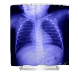 Swallowed Nail Shower Curtain by Ted Kinsman