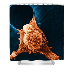 Metastasis Shower Curtain by Science Source