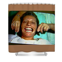 1960s Dental Exam Shower Curtain by Peter Gumaer Ogden