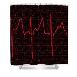 Atrial Fibrillation Shower Curtain by Science Source