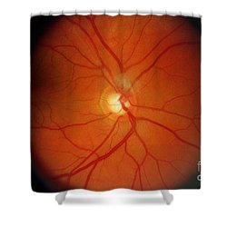 Glaucoma Shower Curtain by Science Source