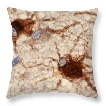 Protoplasmic Astrocytes Throw Pillow