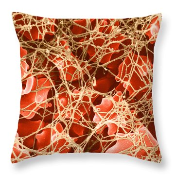 Blood Clot Sem, 2 Of 3 Throw Pillow by David M. Phillips