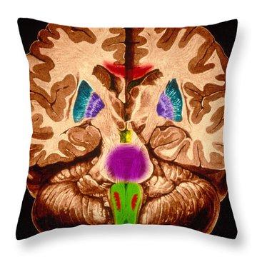 Brain, Coronal Section Throw Pillow