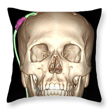 Enhanced 3d Ct Reconstruction Throw Pillow by Living Art Enterprises, LLC