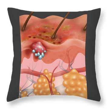 Eczema Throw Pillow