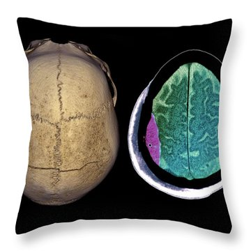 Temporal Bone Throw Pillows