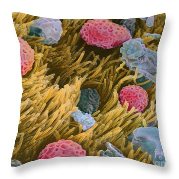 Allergens On Surface Of Trachea Throw Pillow by Spl