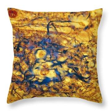 Alzheimers Disease Throw Pillow