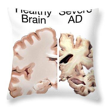 Alzheimers Disease, Healthy Vs. Severe Throw Pillow