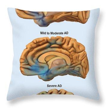 Alzheimers Disease, Severity Comparison Throw Pillow
